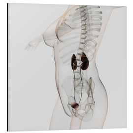 Tableau en aluminium  Three dimensional view of female urinary system. - Stocktrek Images