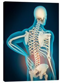 Tableau sur toile  Inflammation in human back area - Stocktrek Images