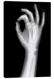 Tableau sur toile  X rayed OK sign
