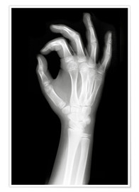 X rayed OK sign