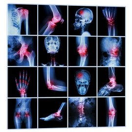 Verre acrylique  Human joint, arthritis and stroke