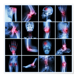 Poster  Human joint, arthritis and stroke